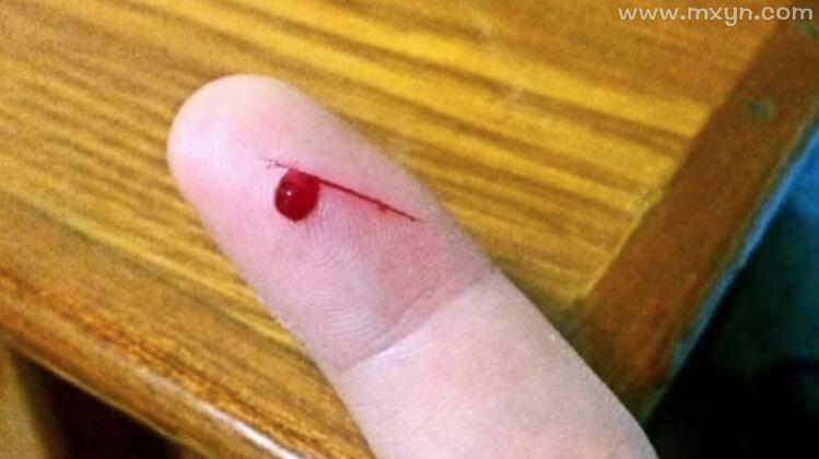 梦见自己手指划破流血